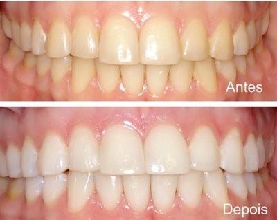 Imed Marques Pombal Branqueamento Dentario