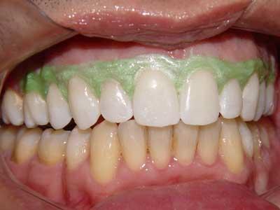 Imed Vasco Da Gama Branqueamento Dentario